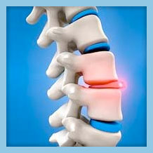 what is a bulging disc orthopedic laser spine surgery