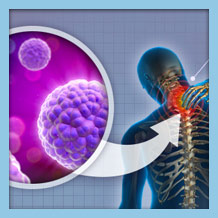 Stem Cell Injection Therapy